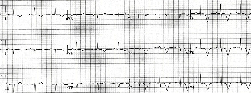 ECG Wellens syndrome type B (type I), deep symmetrical T wave infersion