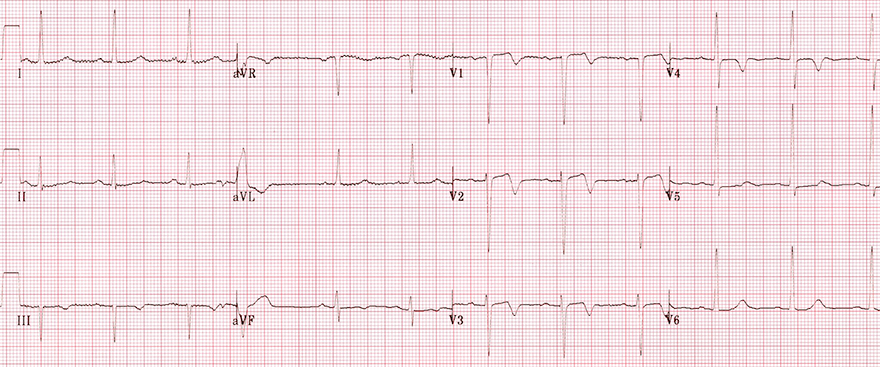 ECG (V2-V3) Wellens syndrome type A pattern (type II), Biphasic precordial T waves with terminal negativity (V2-V3)