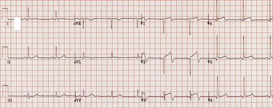 ECG Wellens syndrome type A (type II), Biphasic precordial T waves with terminal negativity (V2-V3)