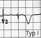 ECG Wellens syndrome type I
