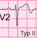 ECG Wellens syndrome type II