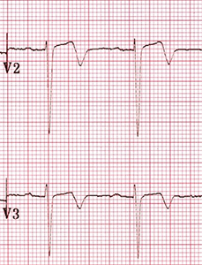 ECG wellens syndrome Type II (Type A), Biphasic, with initial positivity & terminal negativitye