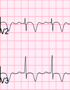 ECG Wellens syndrome type I (Type B), deeply symmetrically negative T waves
