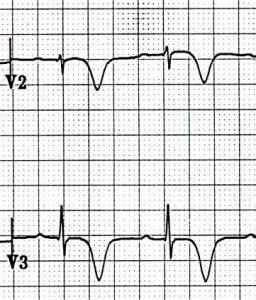 ECG Wellens syndrome type I (Type B), deeply symmetrically inverted T waves