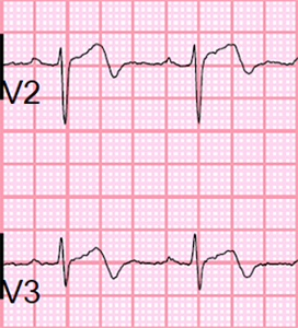 ECG wellens syndrome Type II (Type A), Biphasic T wave