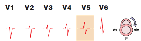 ECG precordial leads and Clockwise (CW) rotation, cor pulmonale, pulmonary embolism
