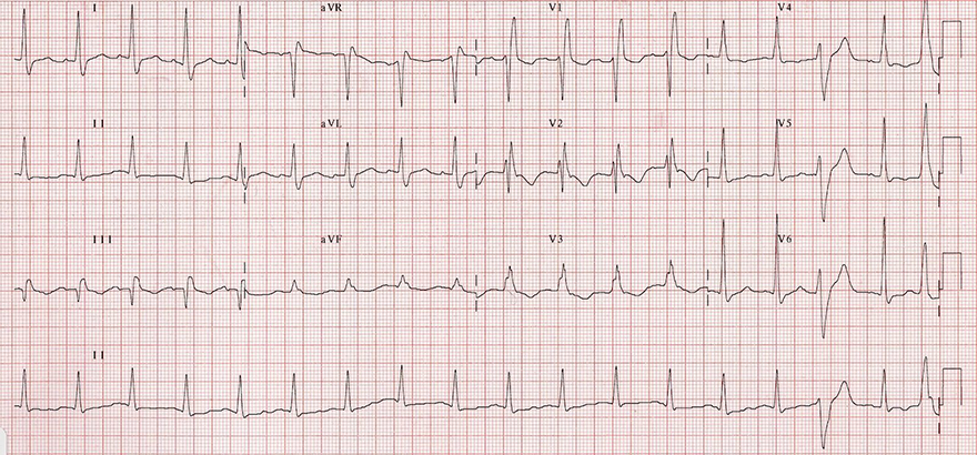ECG acute pulmonary embolism, sinus tachycardia, S1Q3T3, right bundle branch block (RBBB), negative T wave