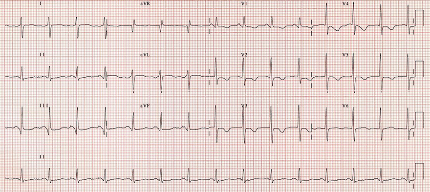 ECG acute pulmonary embolism, right axis deviation, Clockwise (CW) rotation, S1Q3T3, negative T wave