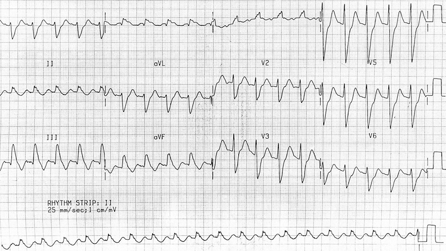 ECG acute pulmonary embolism, sinus tachycardia, right bundle branch block (RBBB), right axis deviation