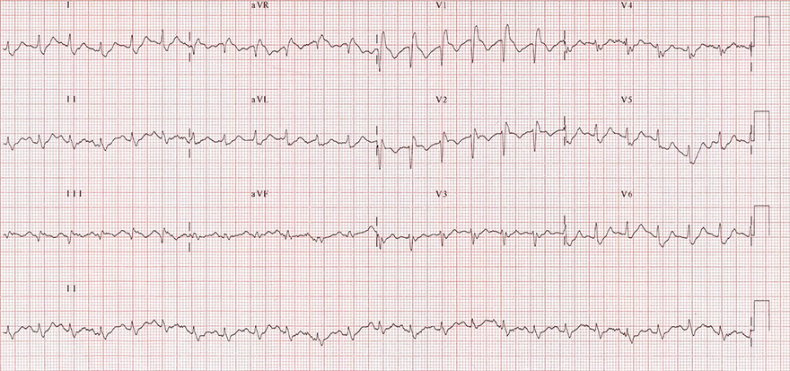 ECG pulmonary embolism, sinus tachycardia, extreme right axis deviation, S1Q3T3, right bundle branch block (RBBB), negative T wave