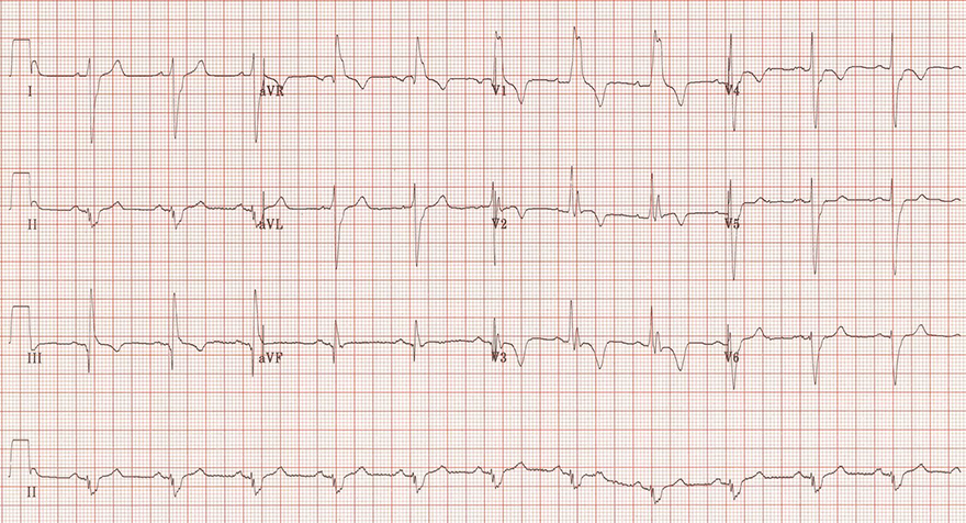 ECG massive pulmonary embolism, extreme right axis deviation, S1Q3T3, right bundle branch block (RBBB), negative T wave, dominant R wave aVR