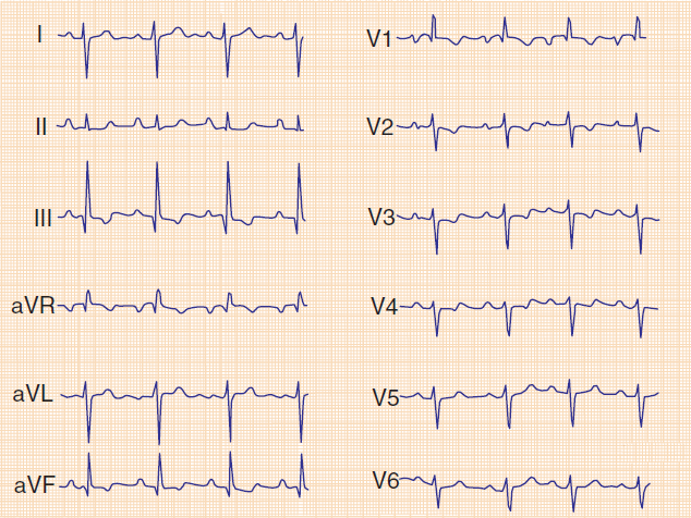 ECG pulmonary embolism, p pulmonale, right axis deviation, S1Q3T3, incomplete right bundle branch block (RBBB), negative T wave