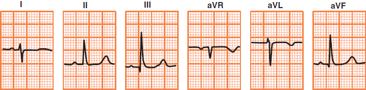 ECG deflection in right heart axis deviation, cor pulmonale, pulmonary embolism