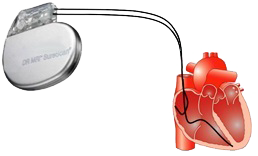 Pacemaker dual chamber leads (atrial, ventricular)