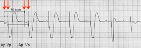 ECG pacemaker DDI pacing mode