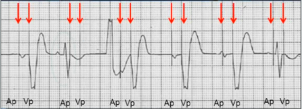 ECG pacemaker DOO pacing mode