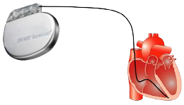 Pacemaker single chamber mode (ventricular lead)