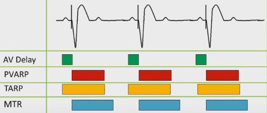 ECG pacemaker, Upper rate behavior 2:1 response, AV interval, PVARP, TARP, MTR, URL