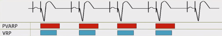 ECG pacemaker DDD mode, PVARP (Post ventricular atrial refractory period), VRP (Ventricular refractory period)