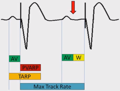 ECG pacemaker wenckebach upper rate response, URI (upper rate interval) is longer than TARP (total atrial refractory period)