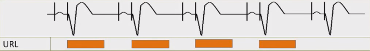 ECG pacemaker URL (upper rate limit), maximum tracking rate (MTR)