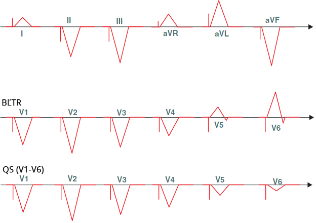 ECG pacemaker, right ventricular (RV) apical pacing
