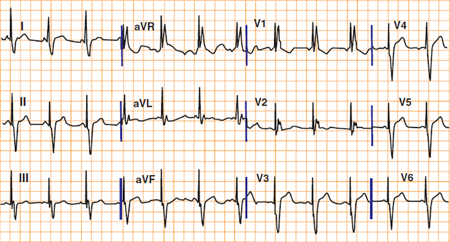 ECG biventricular pacing, DDD pacemaker, left ventricle coronary venous system pacing, right ventricle  apical pacing