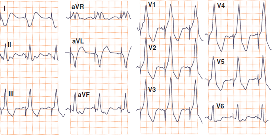 ECG left ventricular pacing, RBBB pattern, right axis deviation in frontal plane