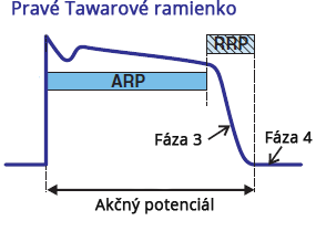 Right bundle branch, APD = action potential duration, ARP = absolute refractory period, RRP = relative refractory period