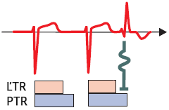 ECG aberrant conduction prematura atrial complex, RBBB morphology, refractory period