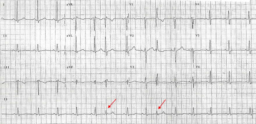 ECG aberrant conduction RBBB morphology, absolute refractory period in right bundle branch