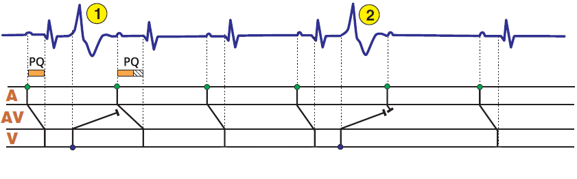 ECG concealed conduction, interpolated ventricular premature complex (VPC), partial refractoriness in AV junction, prolonged PR interval