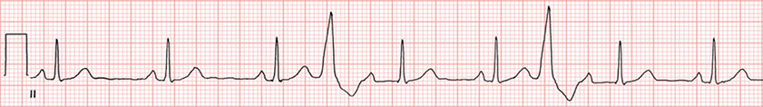 ECG concealed conduction, interpolated ventricular premature impulse (VPC) enters the His-Purkinje system and atrioventricular (AV) node retrogradely