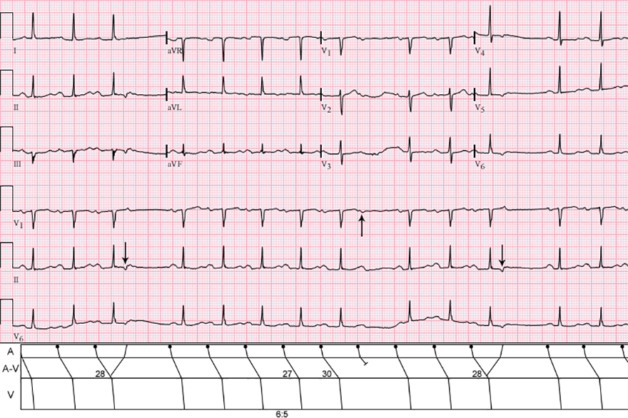 ECG atrial reciprocal (echo) beat, 2nd degree AV block - Mobitz I - Wenckebach