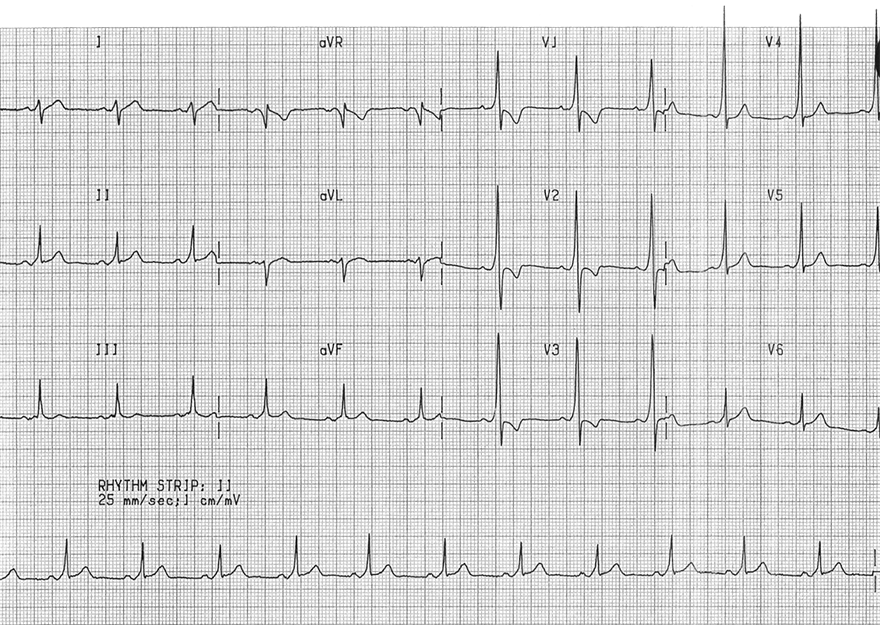 ECG WPW syndrome Type A, fusion beat - delta wave