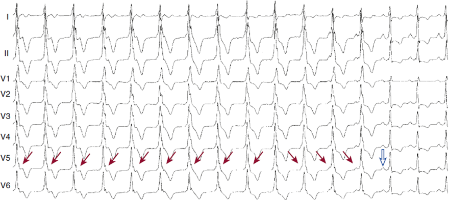 incomplete av dissociation, sinus rhythm and accelerated idioventricular rhythm