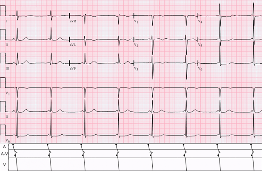 ECG isorhytmic AV dissociation, sinus rhythm, accelerated AV junctional rhythm