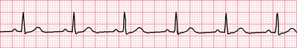ECG sinus rhythm, P wave, narrow QRS complex