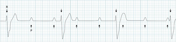 ECG 3rd degree complete AV block, First sinus rhythm (P waves), second ventricular rhythm (broad QRS)