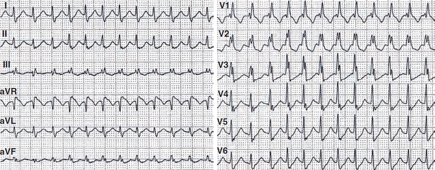 ECG aberrant AVNRT with RBBB, aberrant wide complex supraventricular (SVT) tachycardia