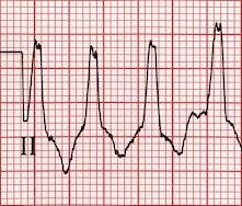 ECG Wide QRS complex, QRS duration greater than 120ms