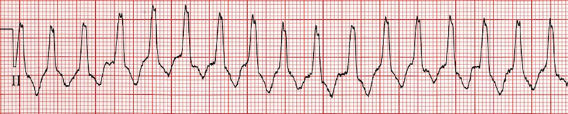 Brugada algorithm, Differential Diagnosis of Wide-Complex Tachycardia