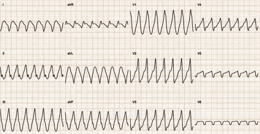 ECG Wide complex tachycardia, SVT with aberrant conduction, WPW syndrome, antidromic AVRT