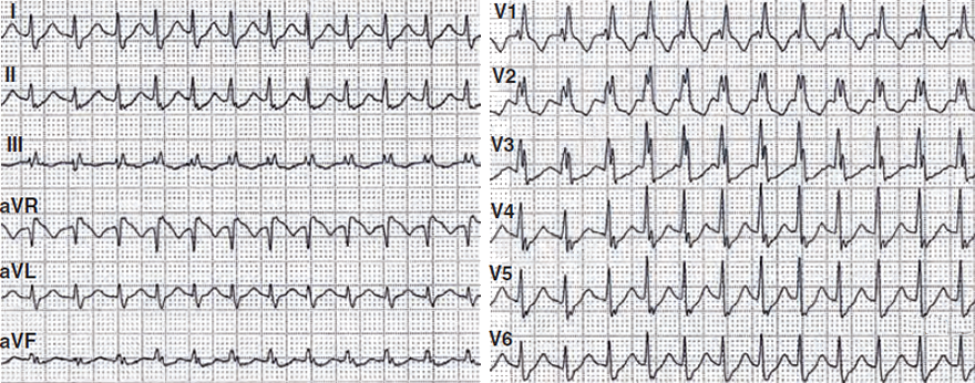 ECG Brugada algorithm, RBBB morphology, normal heart axis, SVT (AVNRT) with aberrant conduction due to bundle branch block