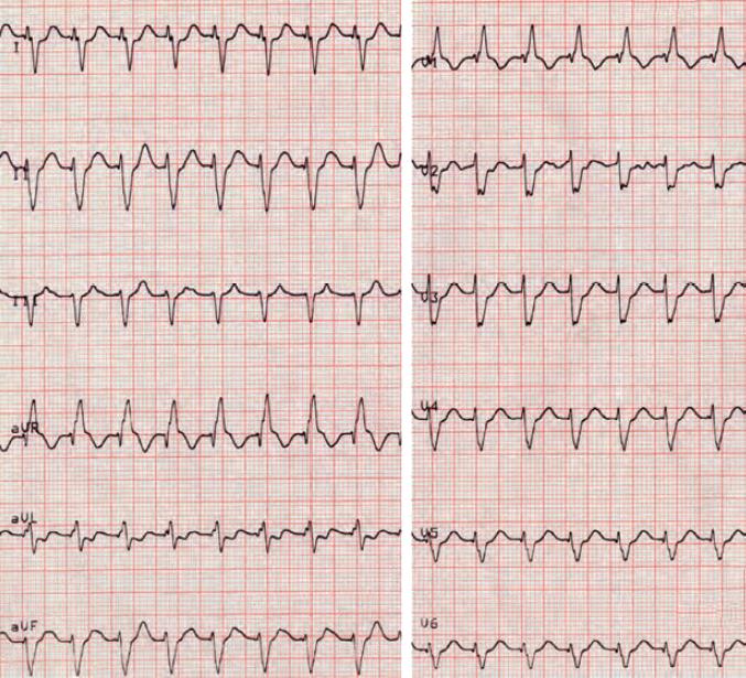 ECG Brugada algorithm, RBBB morphology, extreme right axis deviation, Fascicular ventricular tachycardia, re-entry - left posterior fasciculus