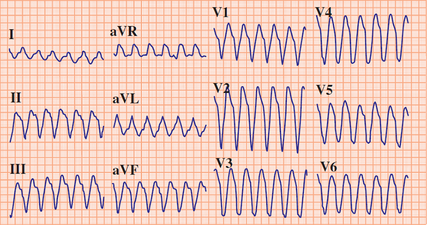 ECG Brugada algorithm, RS complex in all precordial leads (NO) - Ventricular tachycardia