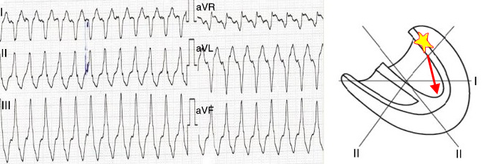 aVR algorithm - Vereckei, Ventricular tachycardia, base localised ectopic focus, negative QRS in aVR lead