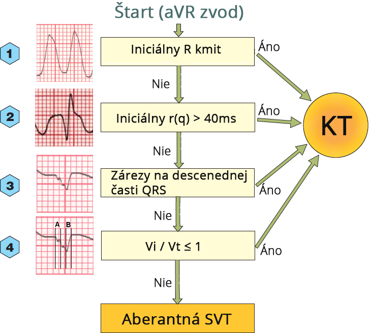 DDx wide complex tachycardia (aVR algorithm - vereckei), initial R wave, Initial r(q) 40ms, Notch on downstroke QRS, Vi/Vt ratio