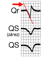 ECG Qr, QS, Lead aVR, slow depolarization from ventricular ectopic focus (ventricular tachycardia), Notch in descending limb, broad q(r) wave