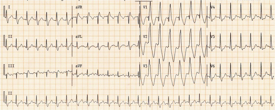 Griffith (Bundle Branch Block) algorithm, DDx broad complex tachycardia, RBBB morphology - YES, SVT with RBBB
